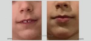 Método Postural Facial